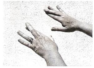 Glândula Hipófise ou Pituitária- Exercício 1