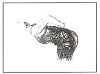 Glândula Supra-renais - Exercício 5